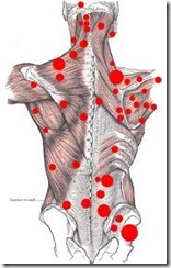 back muscles-points of pain