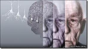 dementia-bbc